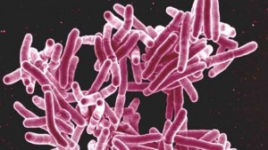 """""""Mycobacterium tuberculosis Bacteria, the Cause of TB"""" by NIAID licensed under CC BY 2.0"""